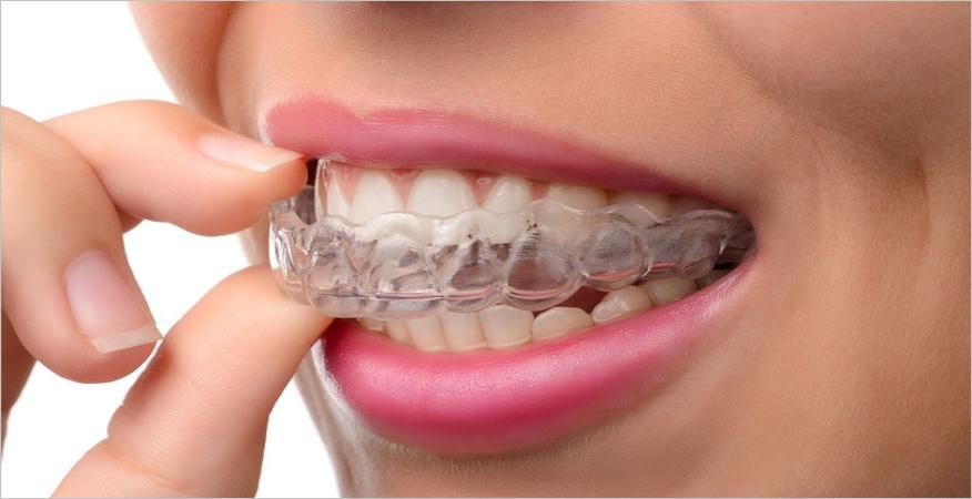 Beljenje zuba kod kuće