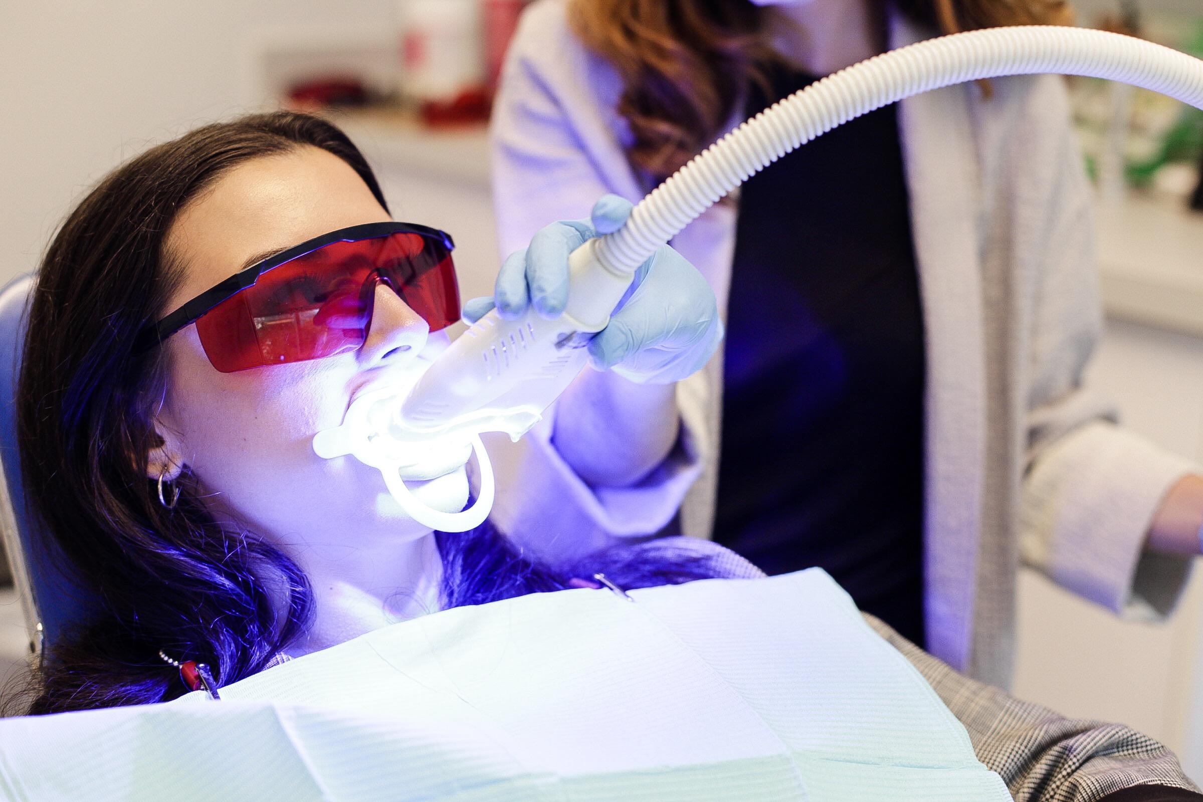 Beljenje zuba u ordinaciji laserom