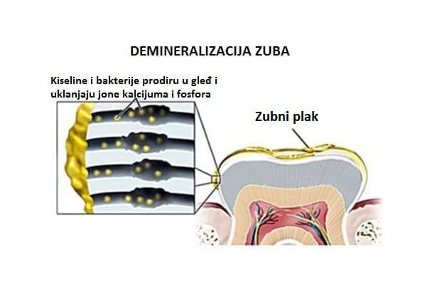 Demineralizacija zuba
