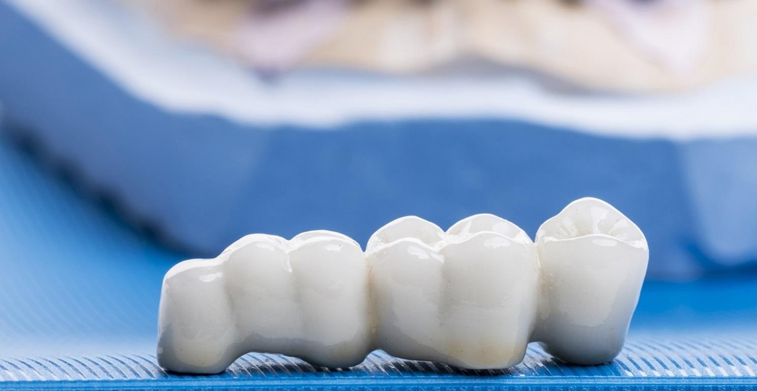 Dentalne nadoknade koje se mogu izbeliti