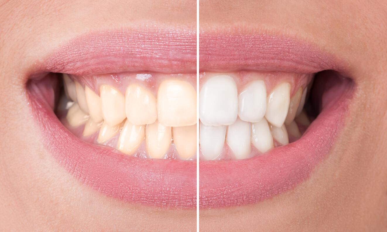 Efekat procedure lasersko izbeljivanje zuba