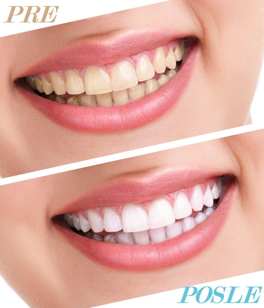 Lasersko izbeljivanje zuba iskustva pre i posle