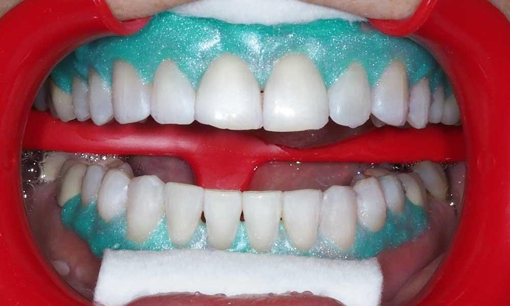 Izolacija mekih tkiva i zuba u toku procedure beljenja zuba