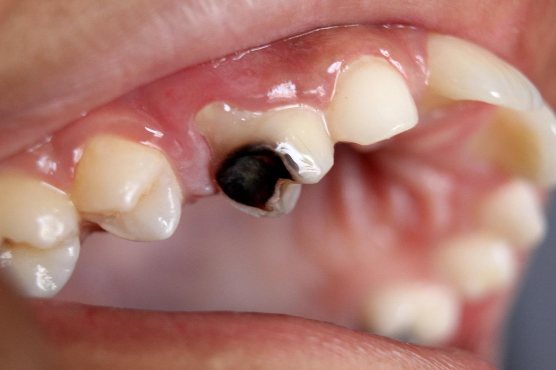 Oštećenje zuba izazvano karijesom