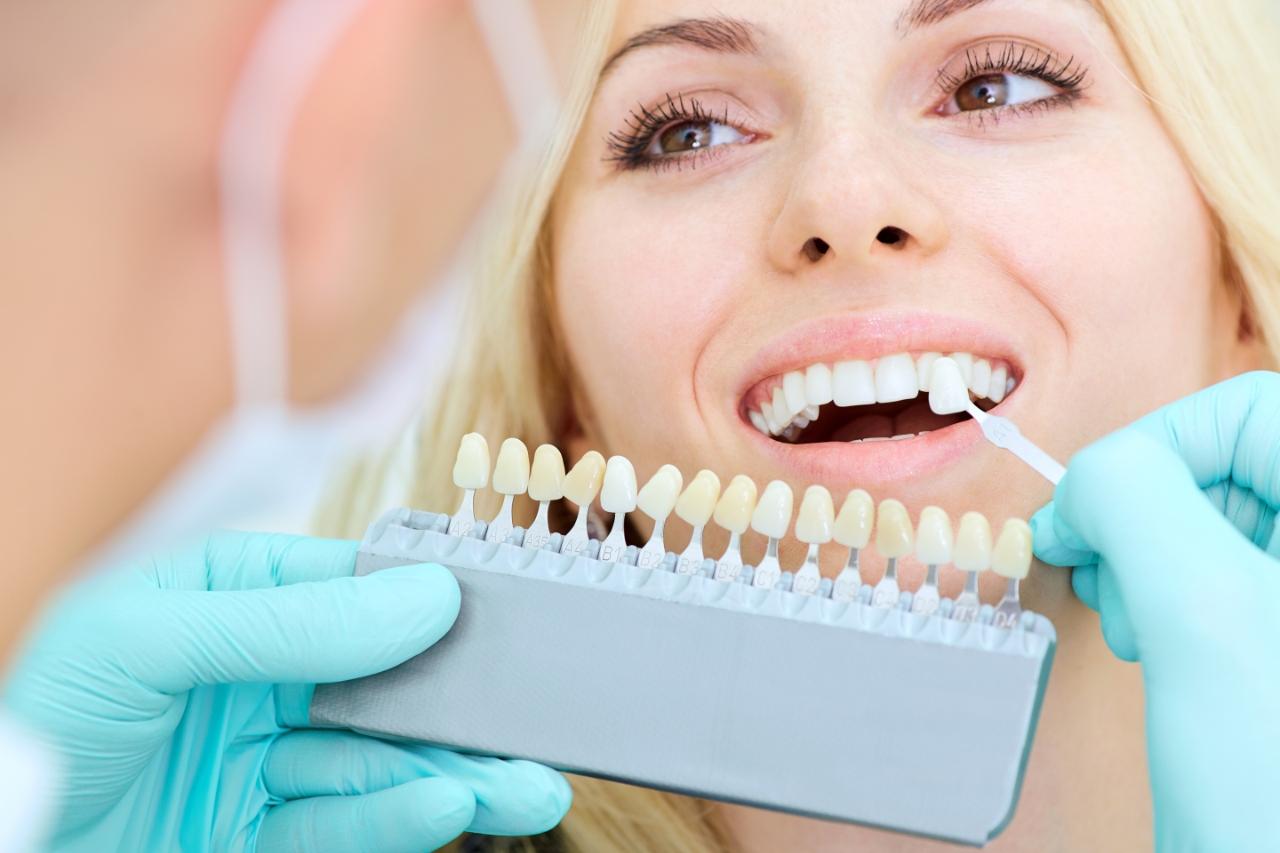 Određivanje boje zuba pre tretmana lasersko izbeljivanje zuba