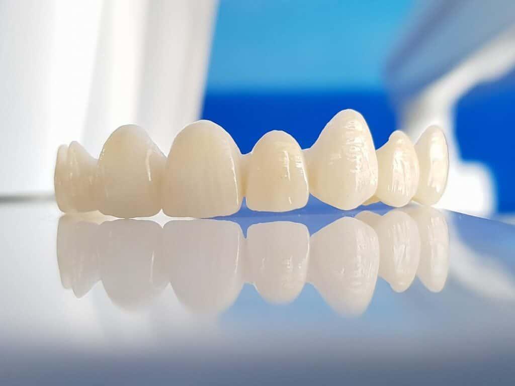 Porcelanske veštačke krunice zuba