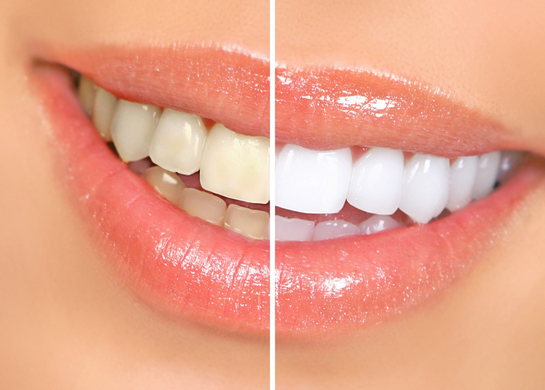 Prelep osmeh postignut beljenjem zuba