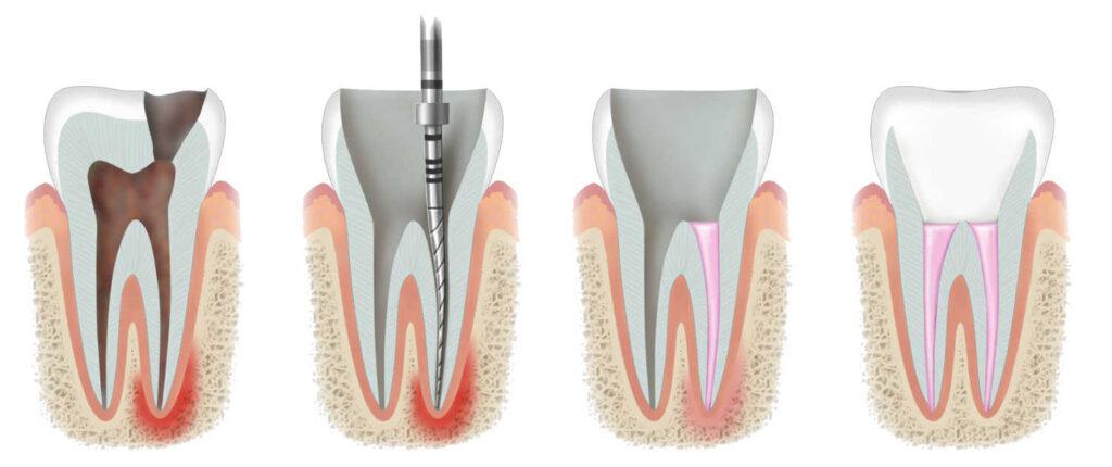 Procedura lečenja kanala korena zuba