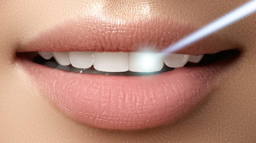 Lasersko Izbeljivanje zuba koristi Usmereni laserski zrak na zube