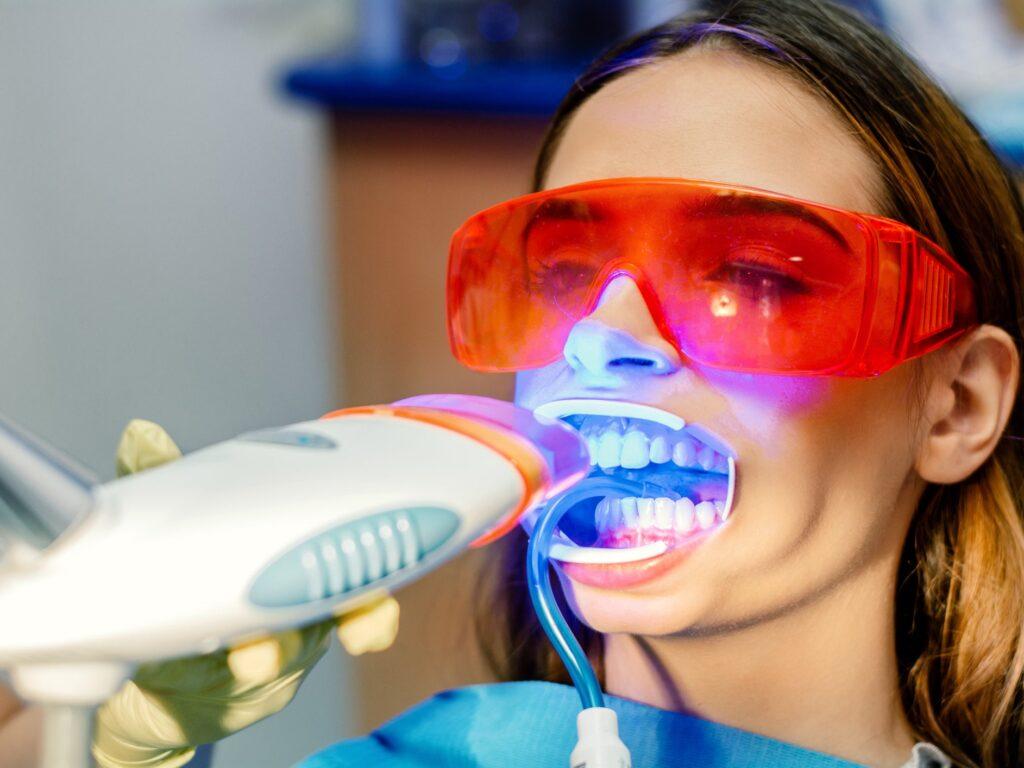 White Smile metoda za izbeljivanje zuba