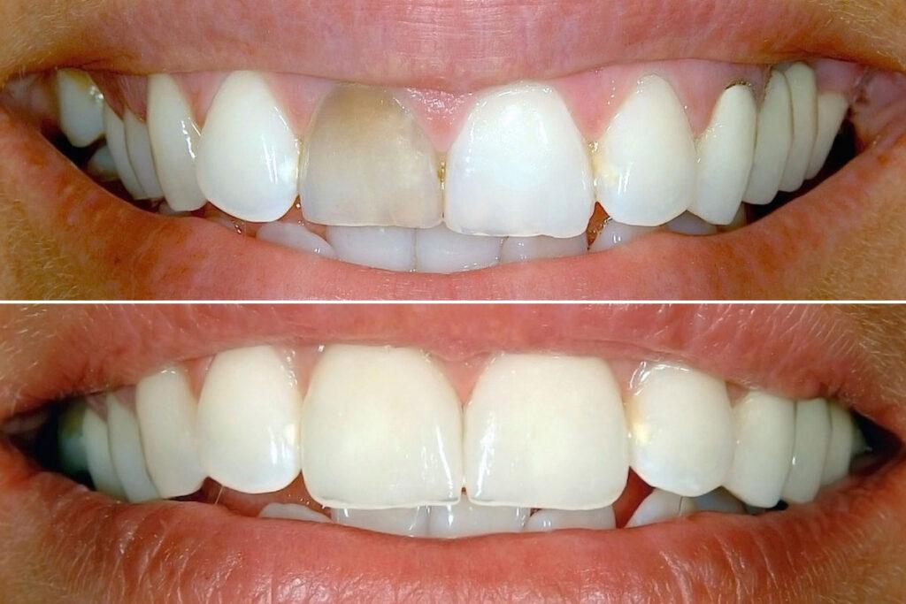 avitalan prebojen zub