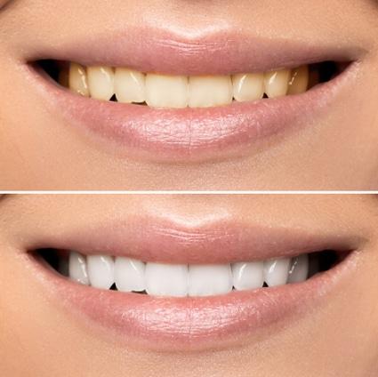 izbeljivanje vitalnih zuba