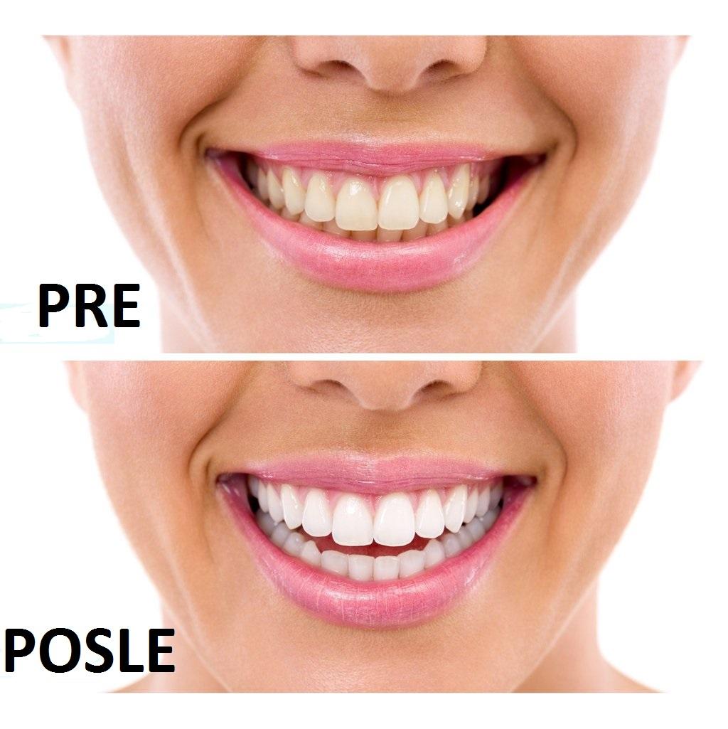 izbeljivanje zuba pre i posle