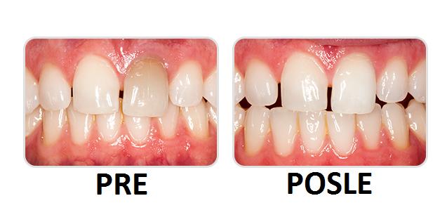 pojedinačno izbeljivanje avitalnog zuba