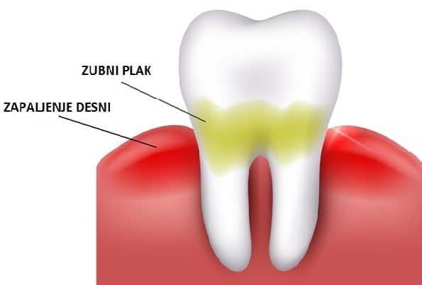 Zubni plak uzrokuje karijes