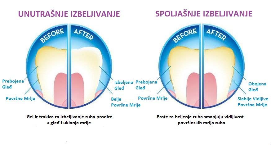 Dejstvo trakica za izbeljivanje zuba u odnosu na paste za beljenje