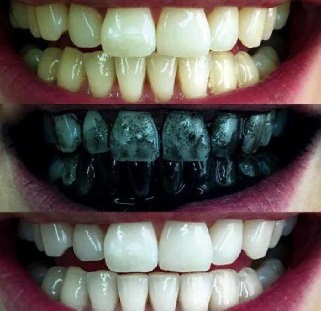 Izbeljivanje zuba aktivnim ugljem