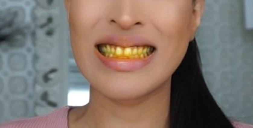 Kurkuma za izbeljivanje zuba iskustva
