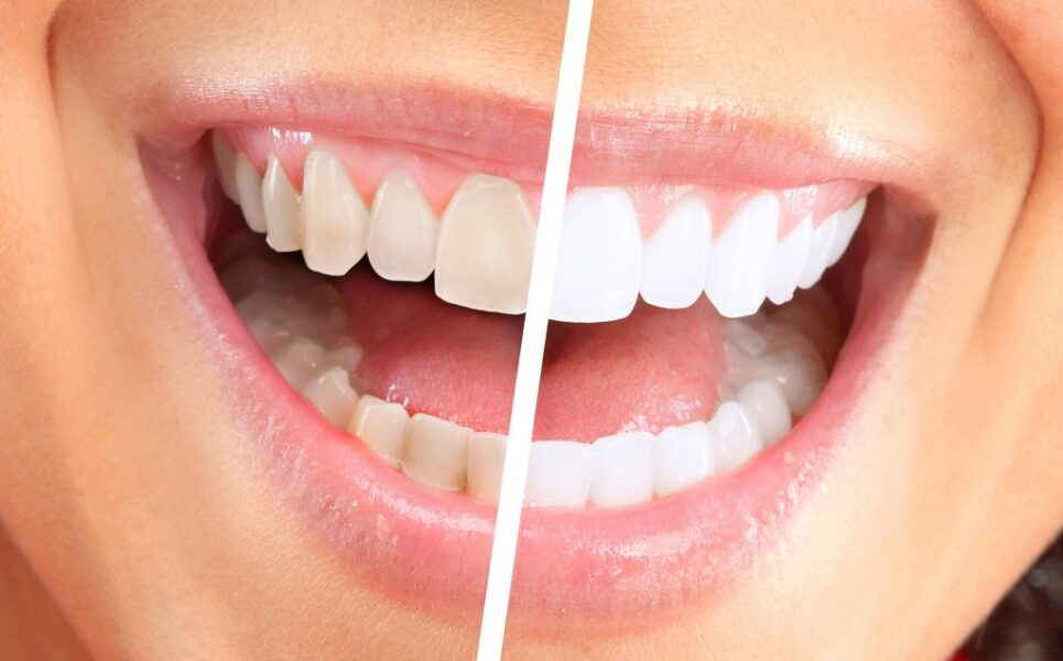Prirodno izbeljivanje zuba slika pre i posle