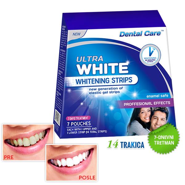 pakovanje ultra white trakice za izbeljivanje zuba sa 14 trakica