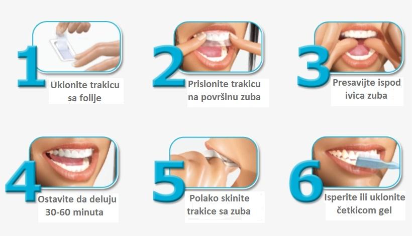 upotreba trakica za beljenje zuba