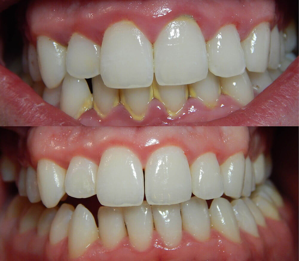 Kamenac na zubima iskustva pre i posle