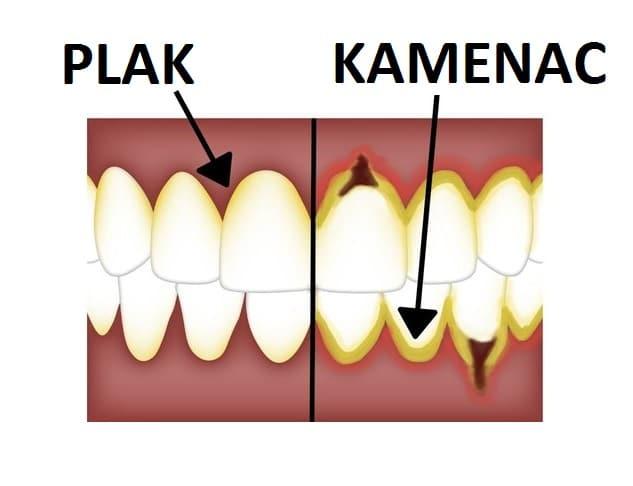 Plak i Kamenac na Zubima