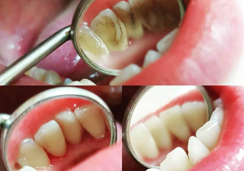 Skidanje kamenca sa zuba sa teško dostupnih i vidljivih mesta