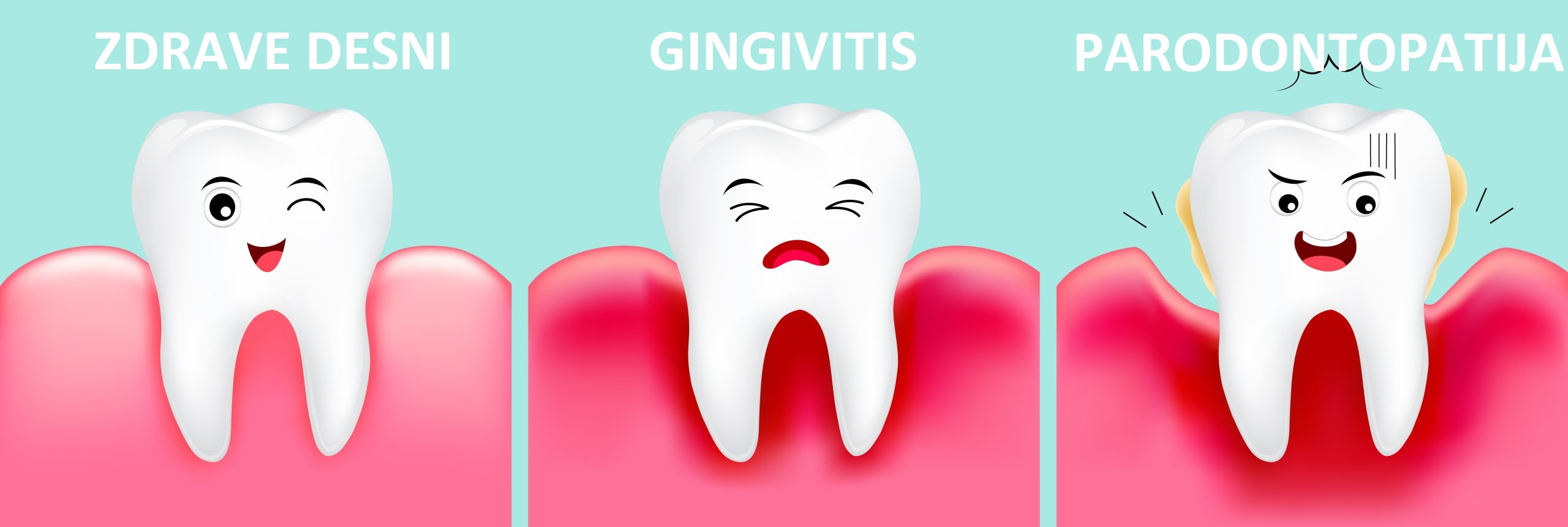 Gingivitis i parodontopatija