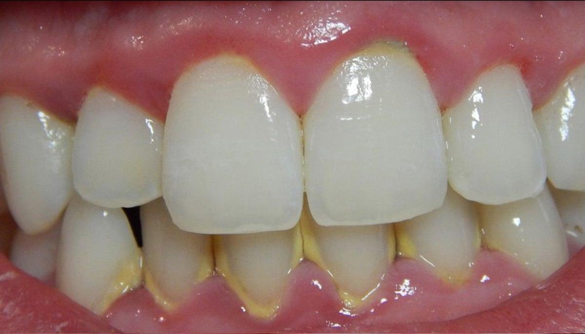 Kamenac na zubima